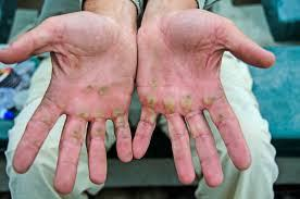 Blisters on hands from rowing without gloves